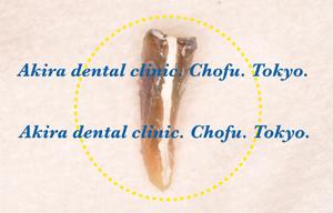 垂直歯根破折歯の口腔外接着再植法